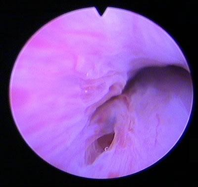 Abb. 1: Eingang in das Divertikel von der Harnröhre aus bei einer Spiegelung gesehen Flüssigkeitsgefülltes Harnröhrendivertikel links und rechts neben der Harnröhre im Ultraschall