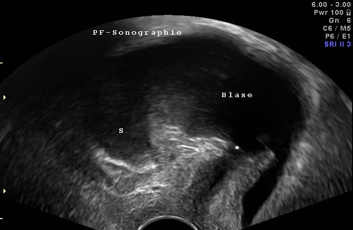 Senkung in der Vaginalsonographie: ein Teil der Blase sinkt unterhalb des Harnröhreneinganges (s. Stern) ab.