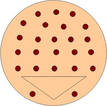 Injektionsschema von Botulinum-Toxin in die Blasenwand: bei neurologisch bedingter Überaktiver Blase werden 20 – 30 Injektionen über die Blasenwand verteilt.